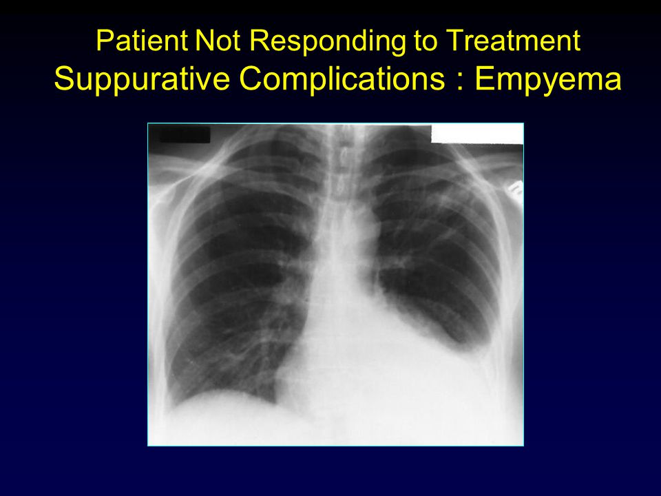 Patient Not Responding to Treatment Suppurative Complications : Empyema