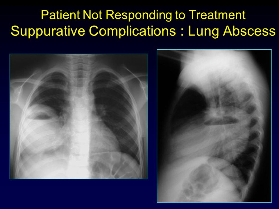 Patient Not Responding to Treatment Suppurative Complications : Lung Abscess