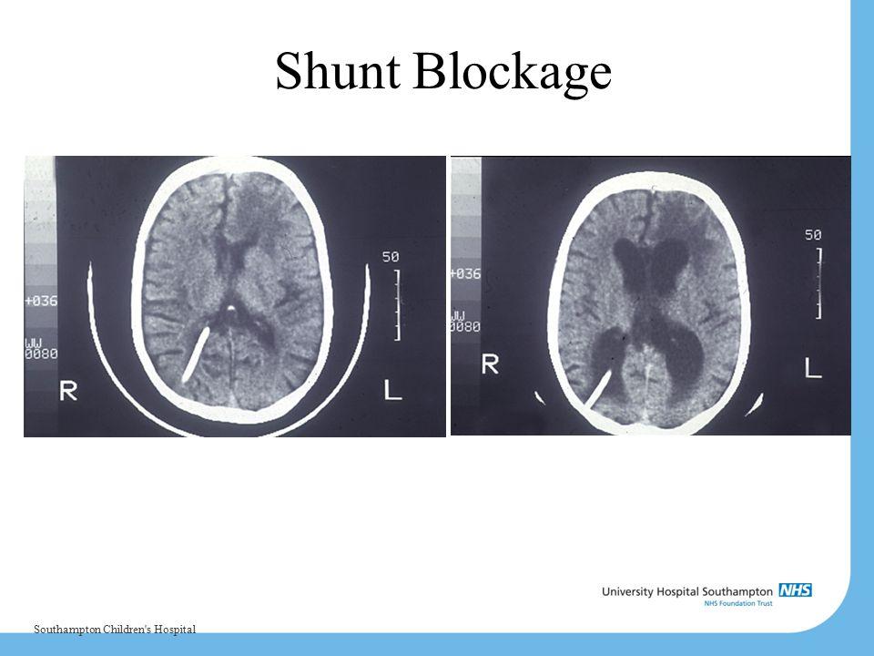 Shunt Blockage Southampton Children s Hospital