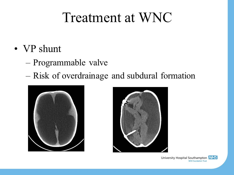 Treatment at WNC VP shunt Programmable valve