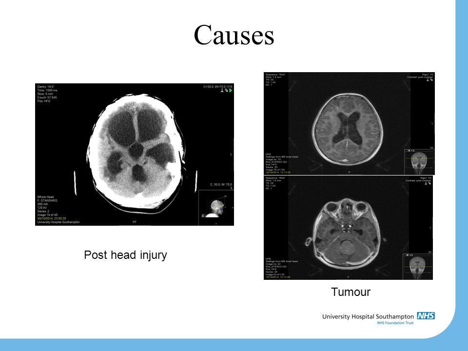 Causes Post head injury Tumour