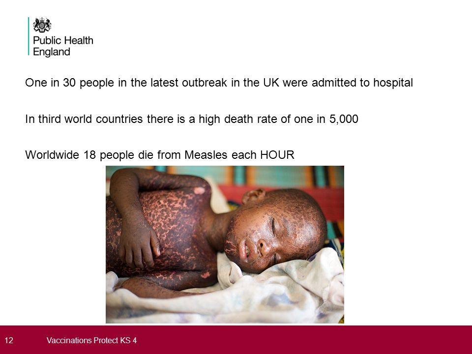 One in 30 people in the latest outbreak in the UK were admitted to hospital In third world countries there is a high death rate of one in 5,000 Worldwide 18 people die from Measles each HOUR