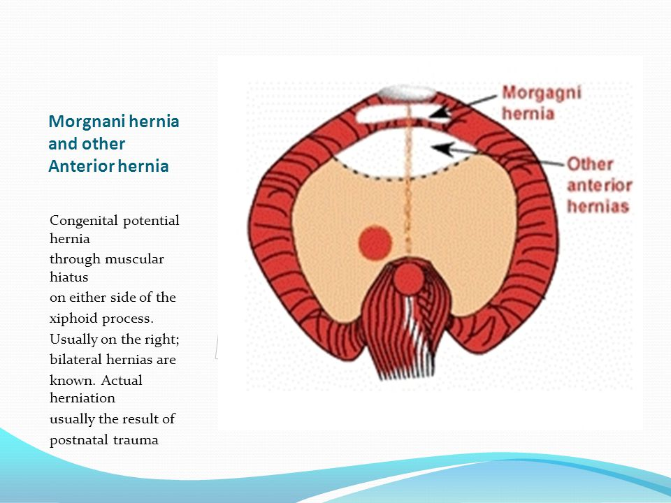 Morgnani hernia and other Anterior hernia