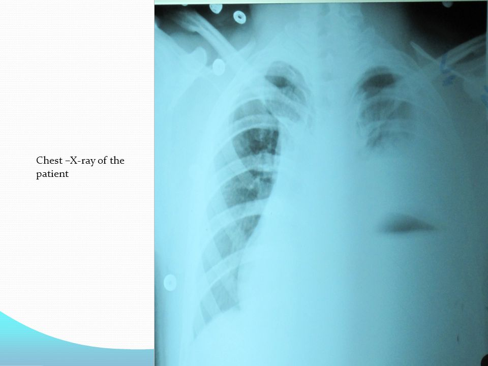 Chest –X-ray of the patient