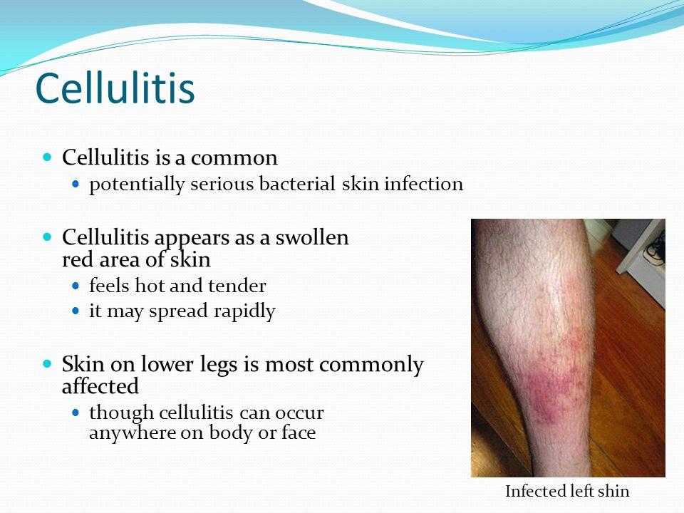 Cellulitis Cellulitis is a common