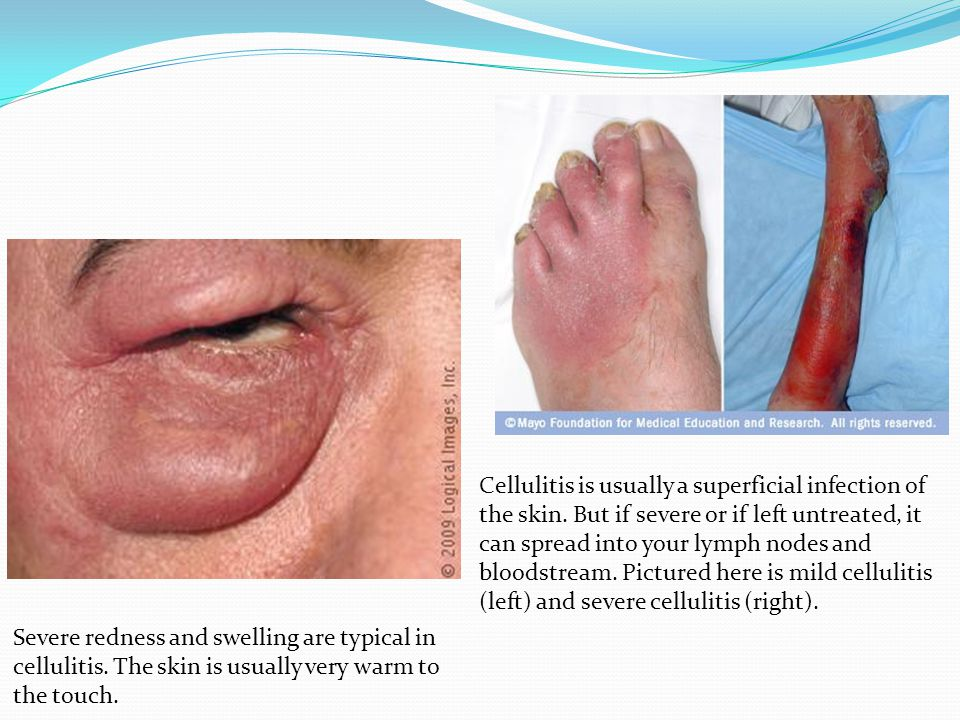 Cellulitis is usually a superficial infection of the skin