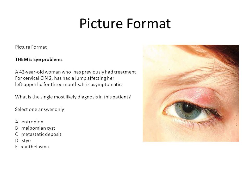 Picture Format