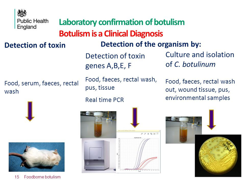 Laboratory confirmation of botulism Botulism is a Clinical Diagnosis