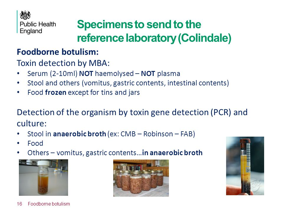 Specimens to send to the reference laboratory (Colindale)