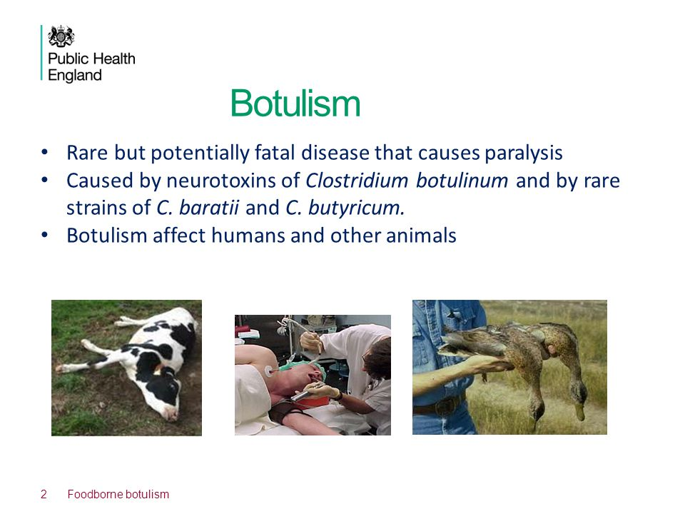 Botulism Rare but potentially fatal disease that causes paralysis