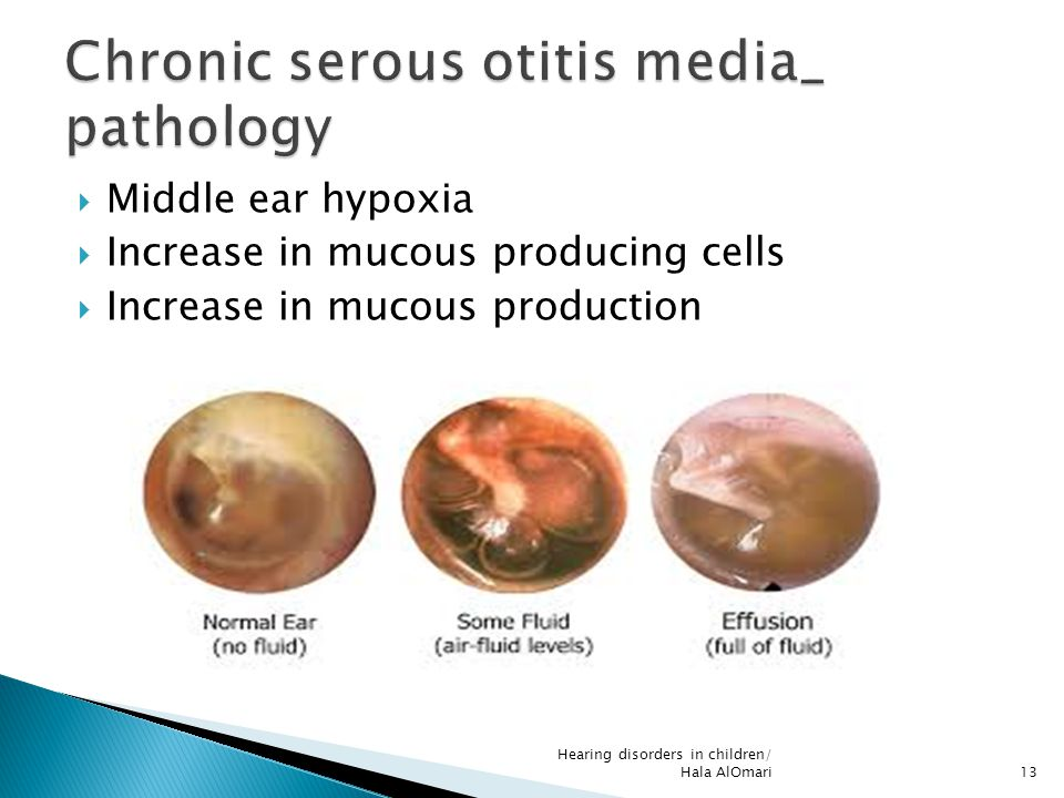 Chronic serous otitis media_ pathology