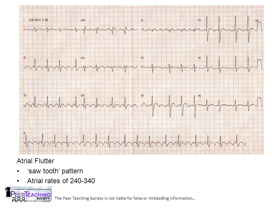 Atrial Flutter 'saw tooth' pattern Atrial rates of 240-340
