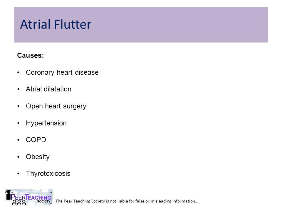 Atrial Flutter Causes: Coronary heart disease Atrial dilatation