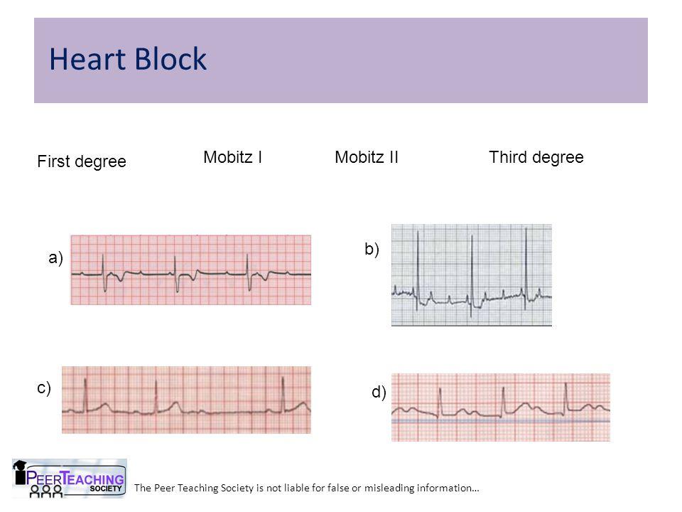 Heart Block First degree Mobitz I Mobitz II Third degree b) a) c) d)