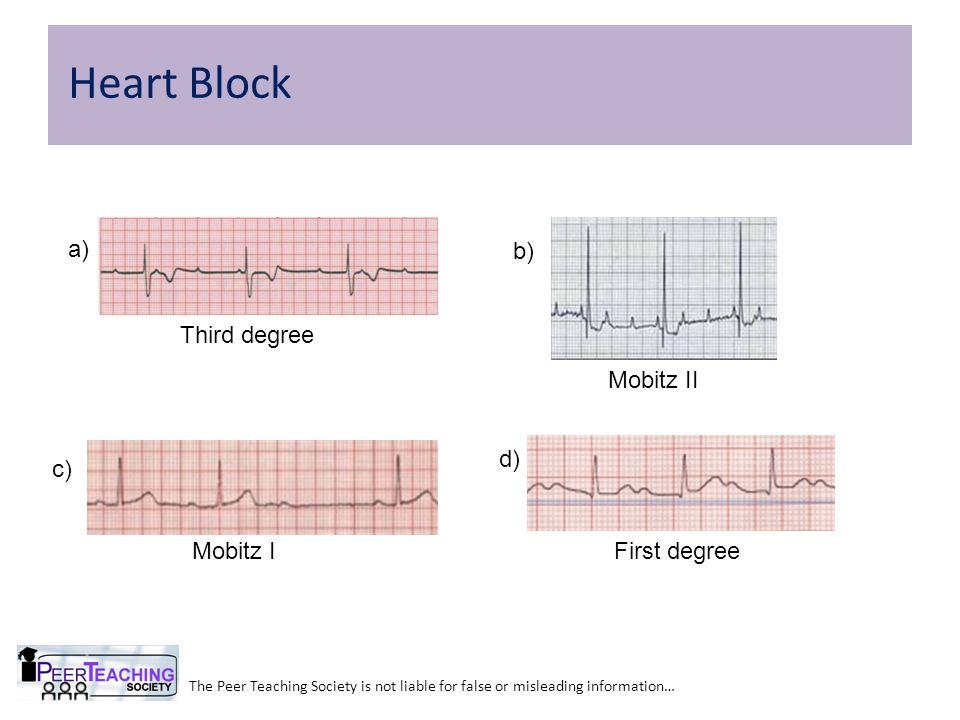 Heart Block a) b) Third degree Mobitz II d) c) First degree Mobitz I