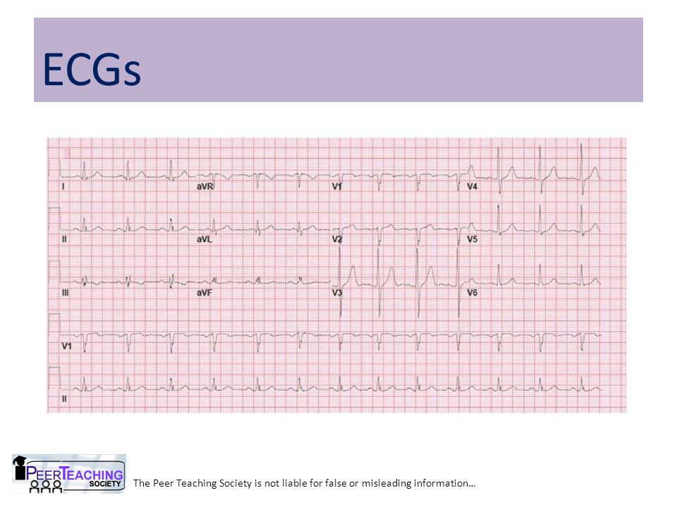 ECGs The Peer Teaching Society is not liable for false or misleading information…