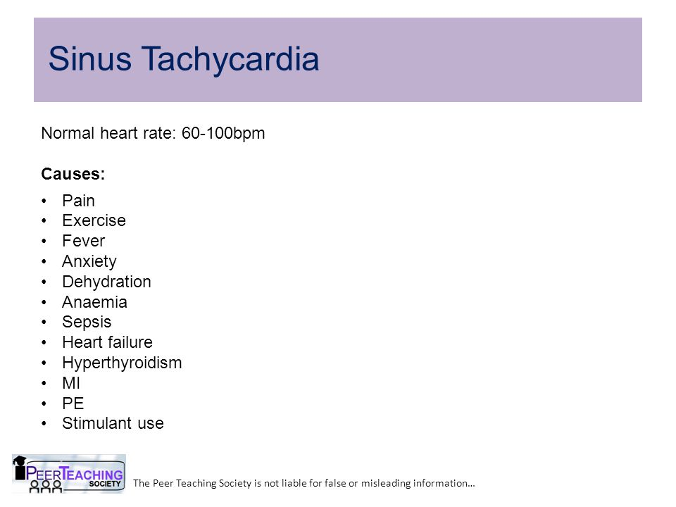 Sinus Tachycardia Normal heart rate: 60-100bpm Causes: Pain Exercise
