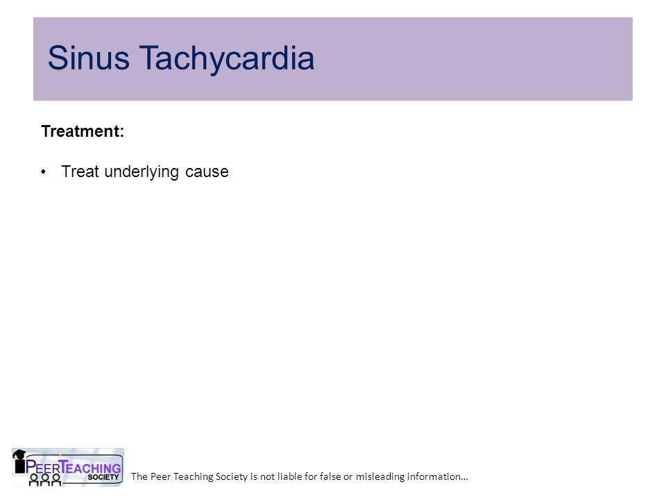 Sinus Tachycardia Treatment: Treat underlying cause