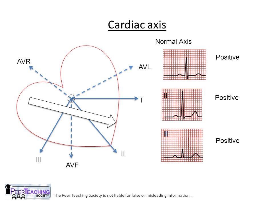 Cardiac axis Normal Axis Positive AVR AVL Positive I Positive II III