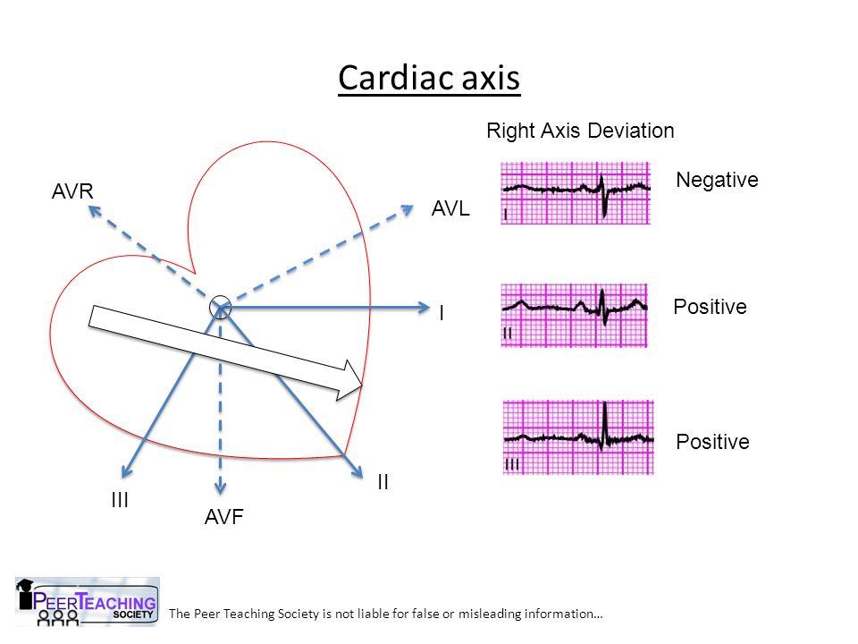 Cardiac axis Right Axis Deviation Negative AVR AVL Positive I Positive
