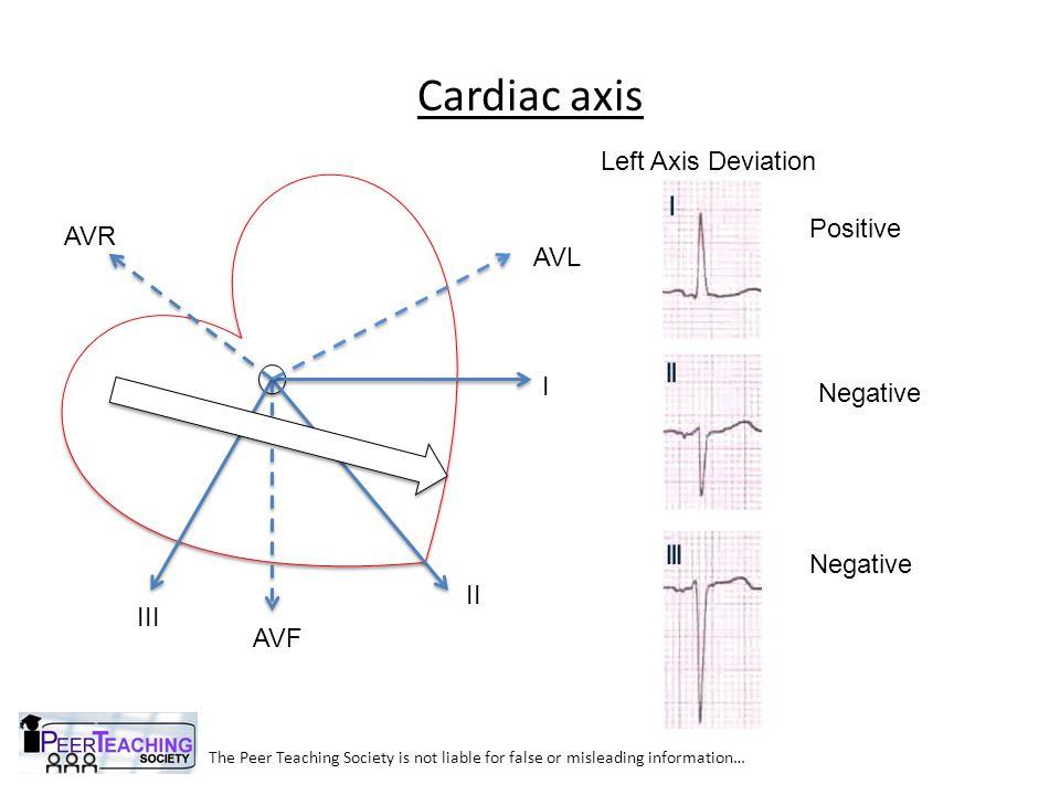 Cardiac axis Left Axis Deviation Positive AVR AVL I Negative Negative