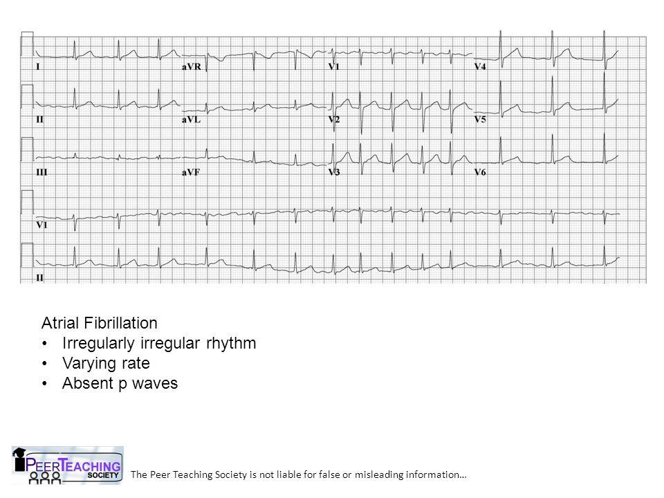 Irregularly irregular rhythm Varying rate Absent p waves