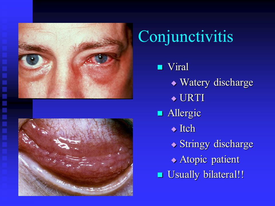 Conjunctivitis Viral Watery discharge URTI Allergic Itch