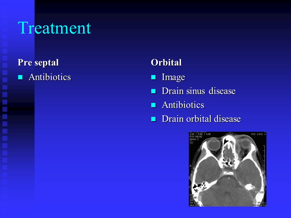 Treatment Pre septal Orbital Antibiotics Image Drain sinus disease