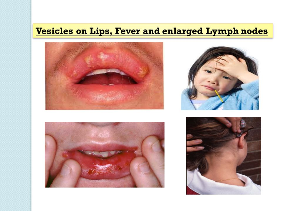 Vesicles on Lips, Fever and enlarged Lymph nodes