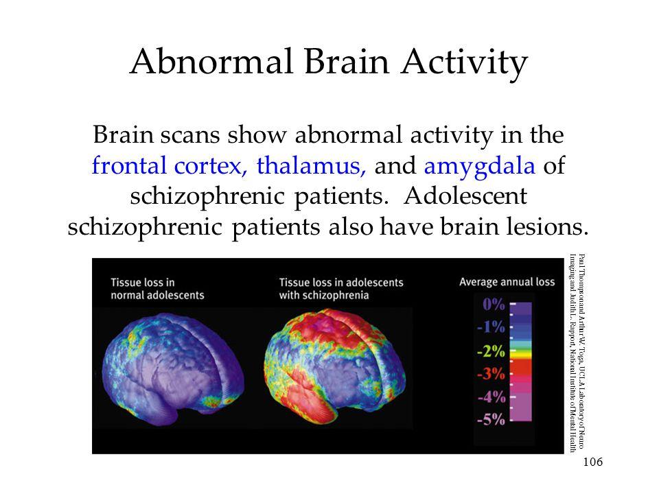 Abnormal Brain Activity