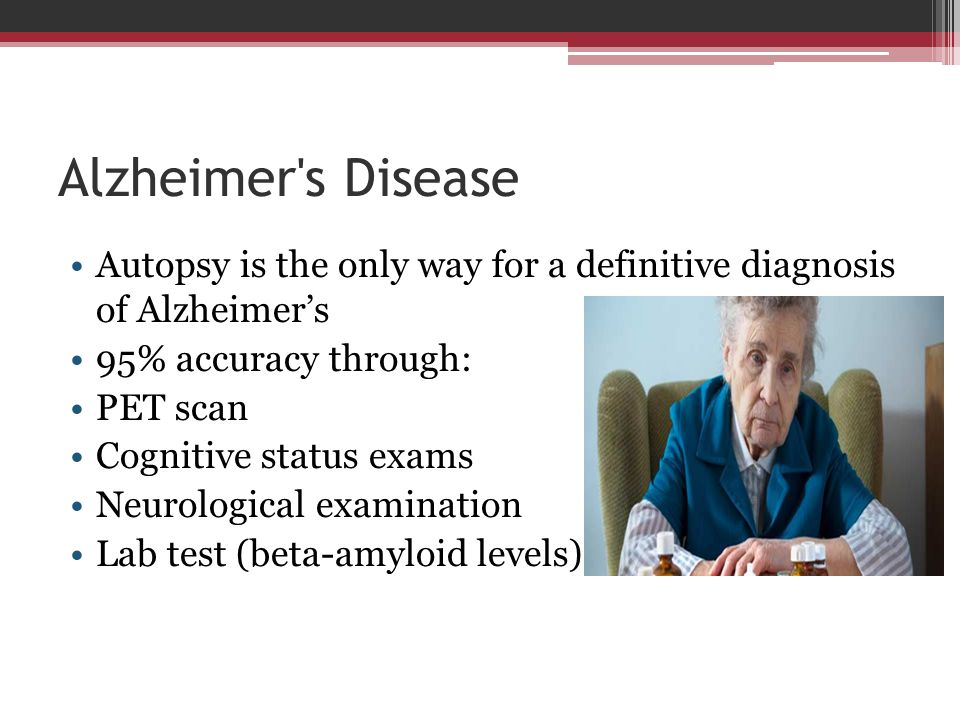Alzheimer s Disease Autopsy is the only way for a definitive diagnosis of Alzheimer's. 95% accuracy through: