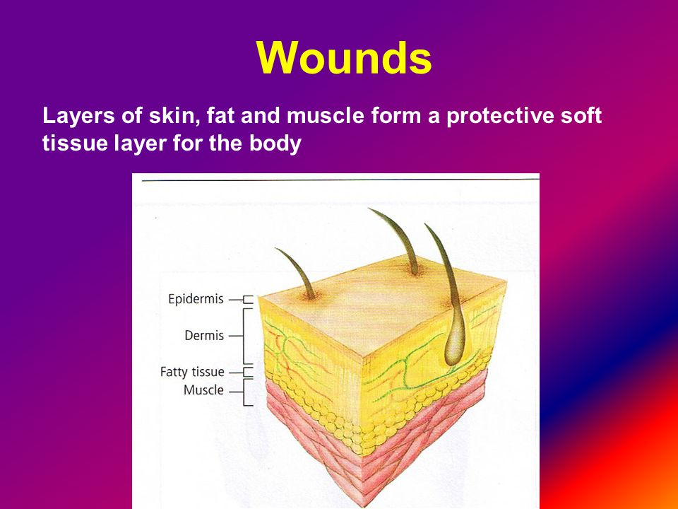 Wounds Layers of skin, fat and muscle form a protective soft tissue layer for the body