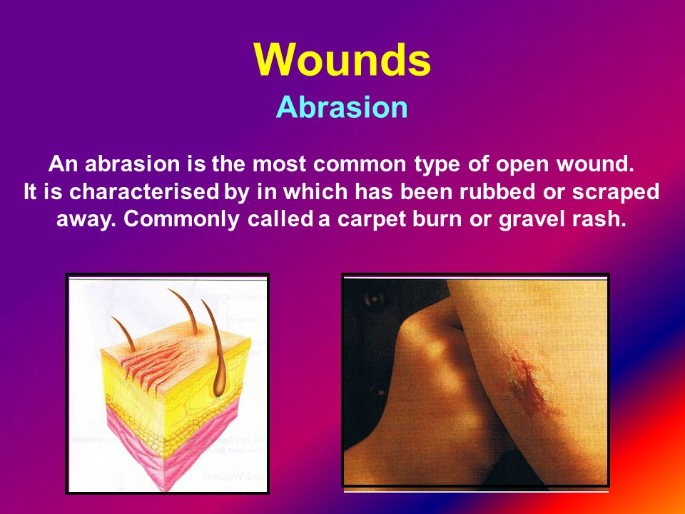 An abrasion is the most common type of open wound.