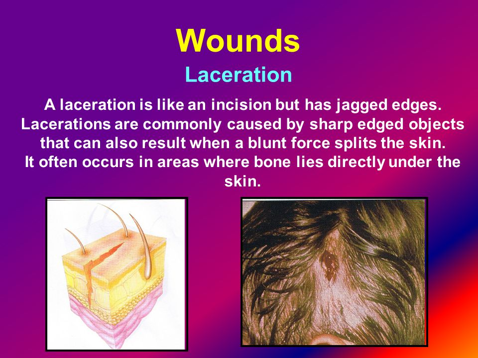 Wounds Laceration. A laceration is like an incision but has jagged edges.