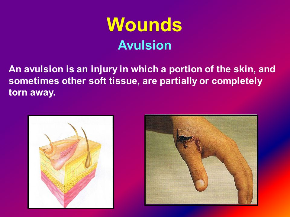 Wounds Avulsion.