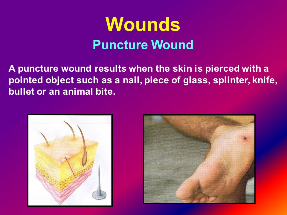 Wounds Puncture Wound.
