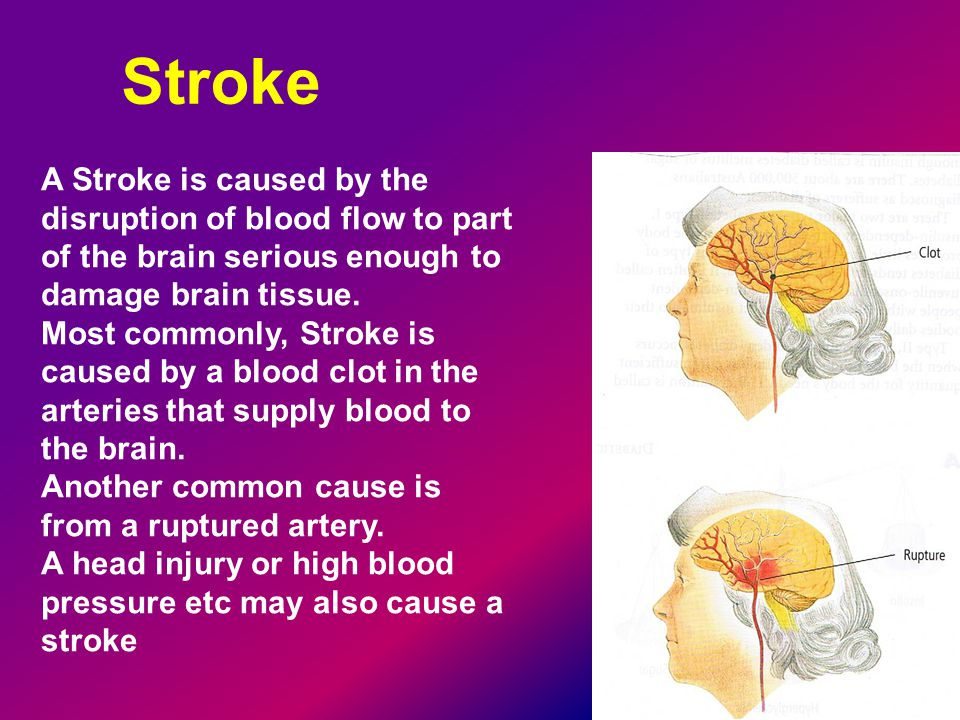 Stroke A Stroke is caused by the disruption of blood flow to part of the brain serious enough to damage brain tissue.