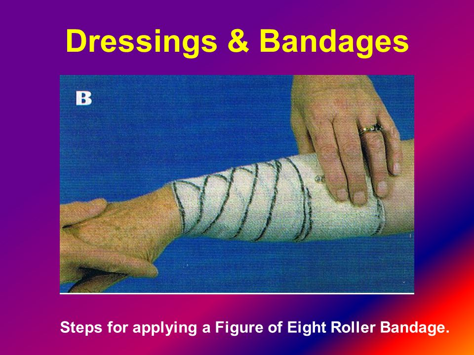 Dressings & Bandages Steps for applying a Figure of Eight Roller Bandage.