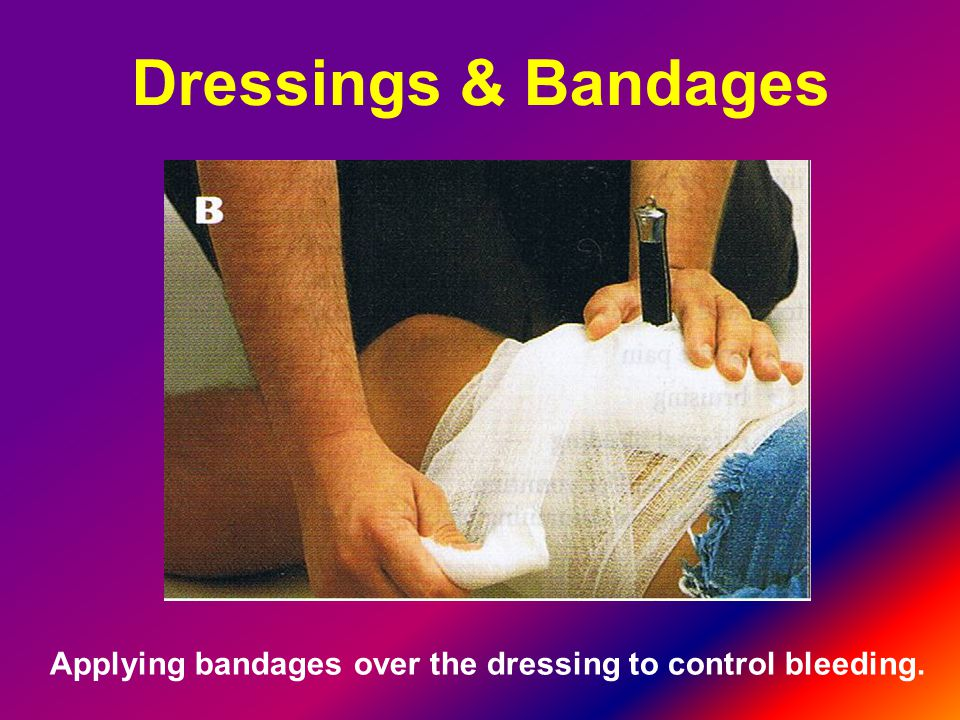 Applying bandages over the dressing to control bleeding.