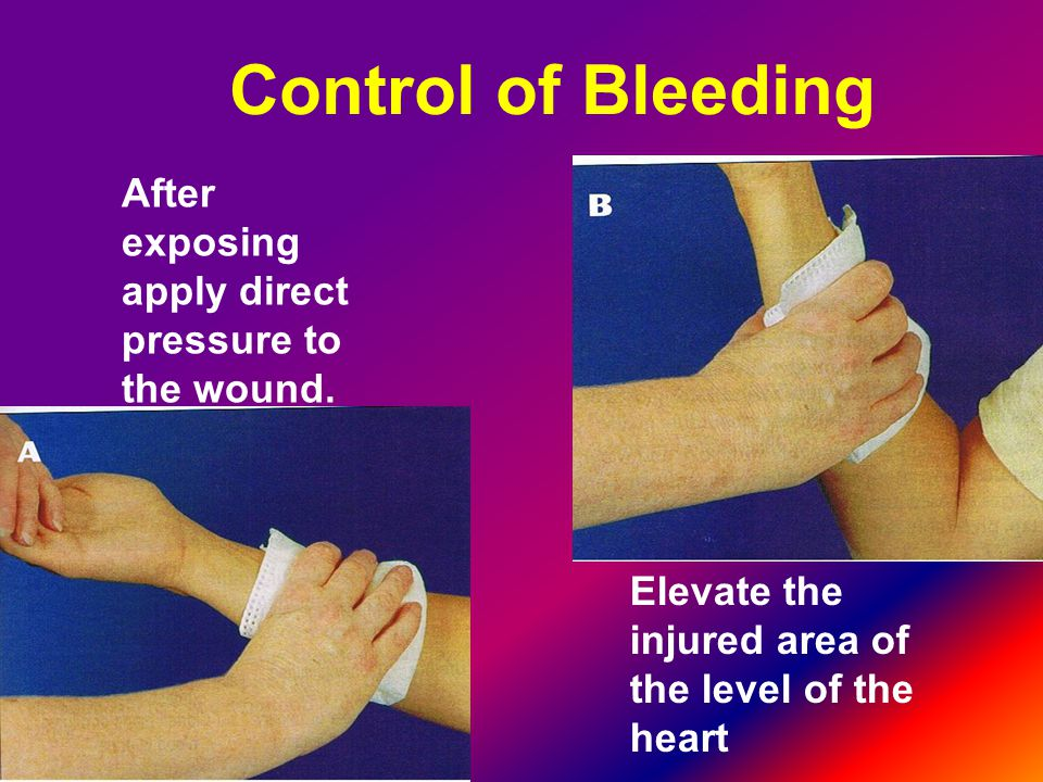 Control of Bleeding After exposing apply direct pressure to the wound.