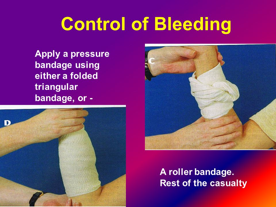 Control of Bleeding Apply a pressure bandage using either a folded triangular bandage, or - A roller bandage.