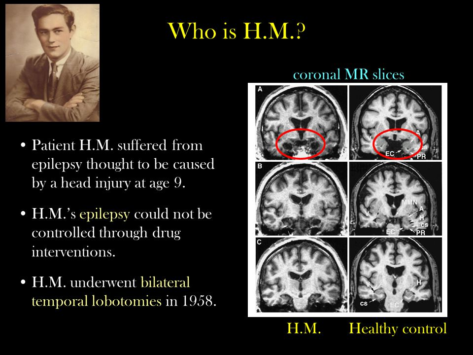 Who is H.M. coronal MR slices