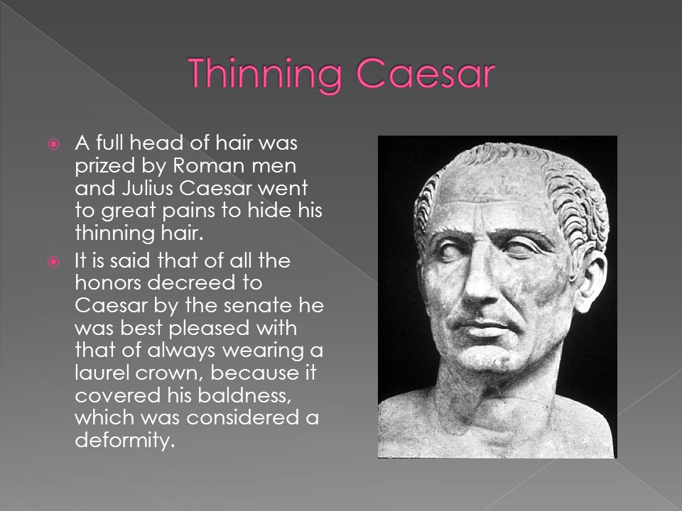 Thinning Caesar A full head of hair was prized by Roman men and Julius Caesar went to great pains to hide his thinning hair.