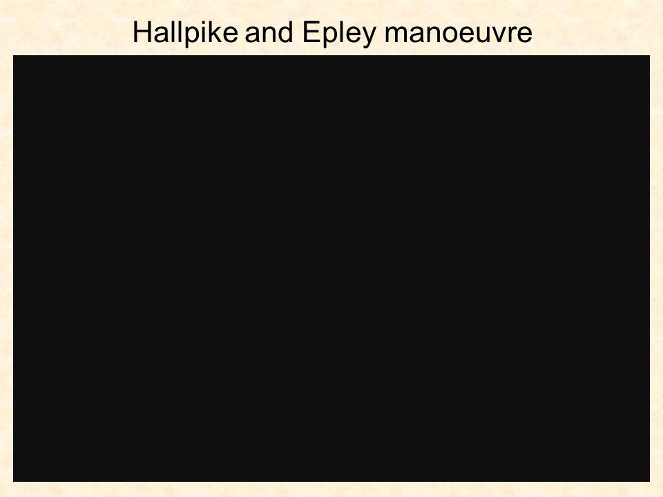 Hallpike and Epley manoeuvre