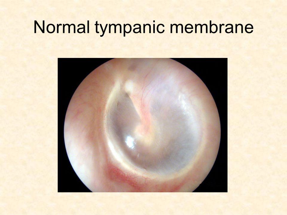 Normal tympanic membrane