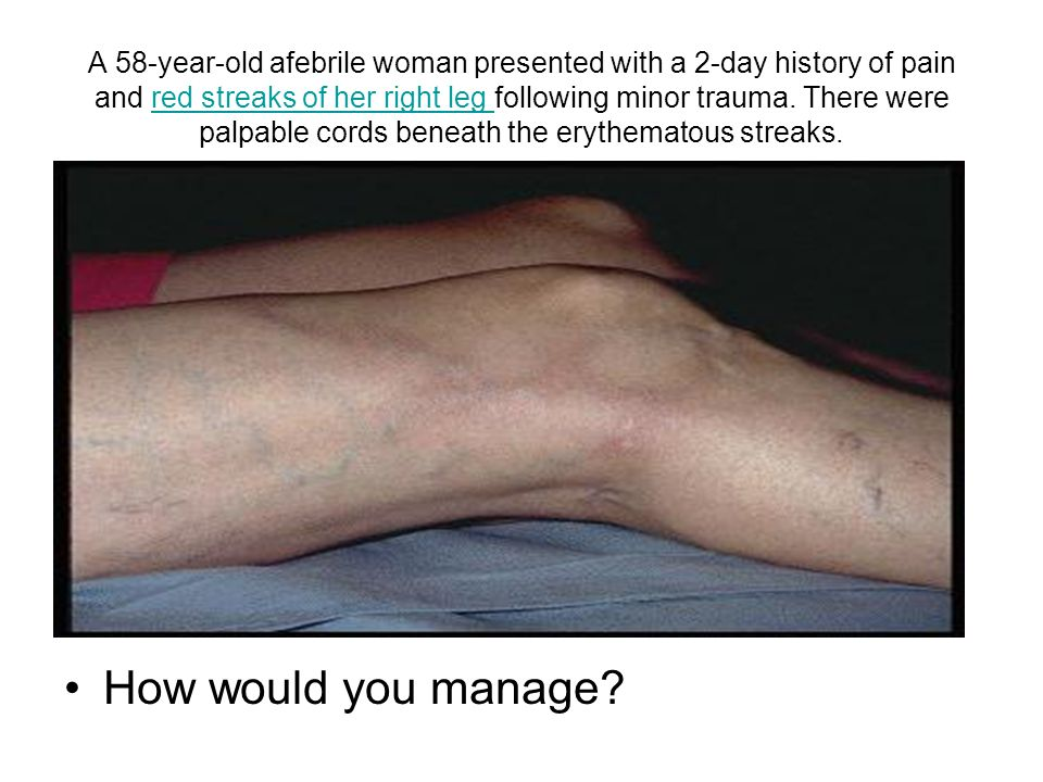 A 58-year-old afebrile woman presented with a 2-day history of pain and red streaks of her right leg following minor trauma. There were palpable cords beneath the erythematous streaks.