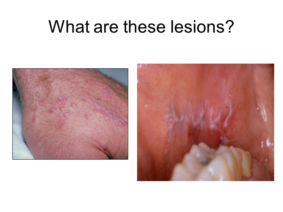 What are these lesions