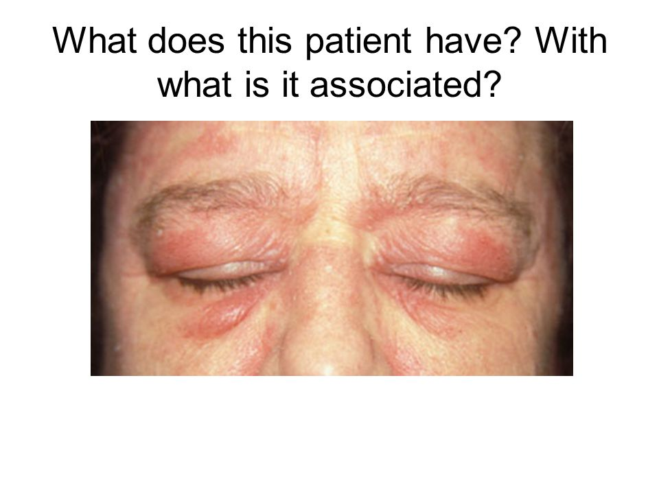 What does this patient have With what is it associated