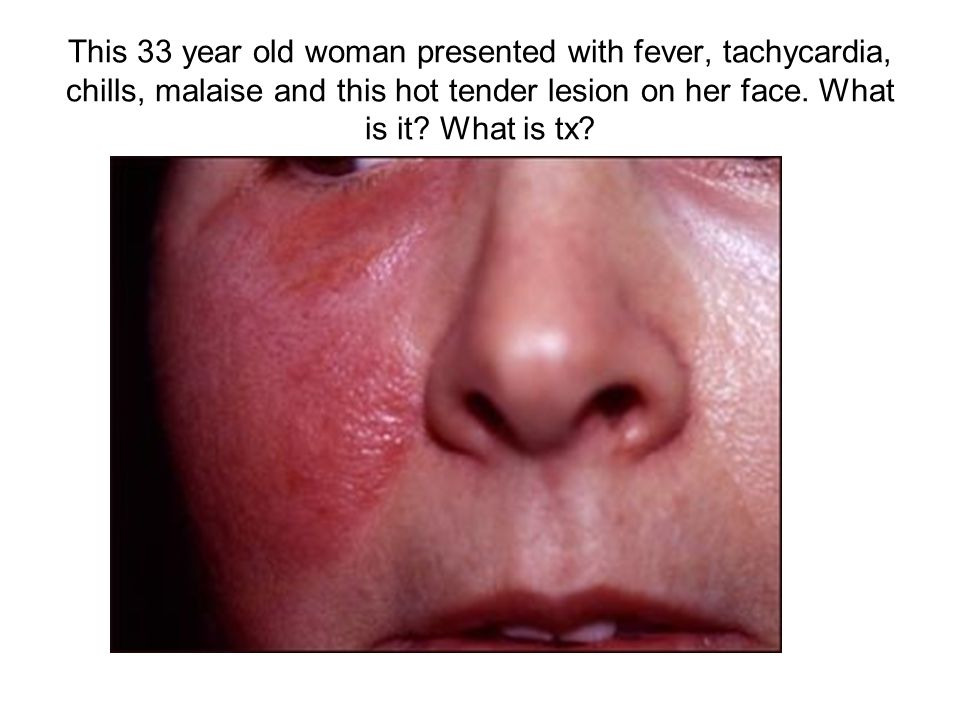 This 33 year old woman presented with fever, tachycardia, chills, malaise and this hot tender lesion on her face.