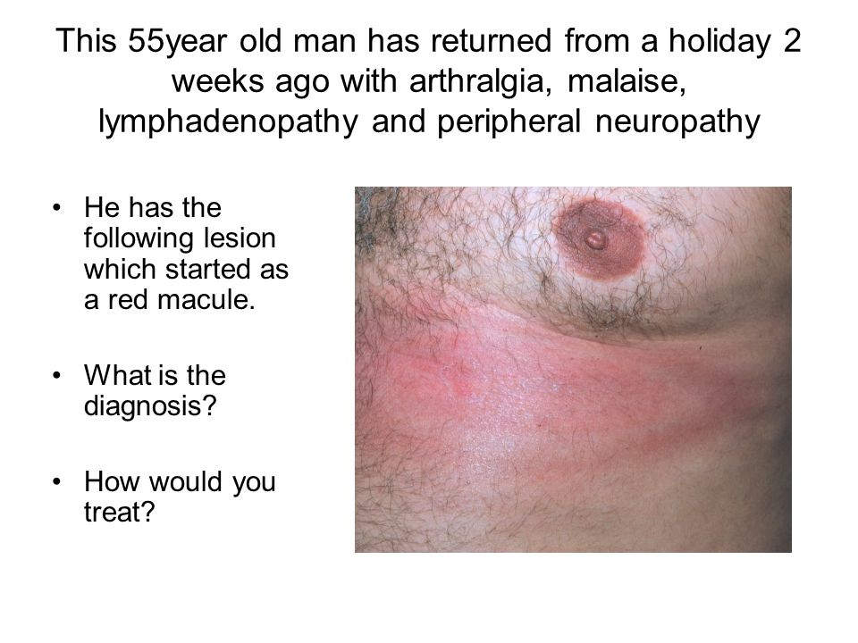 This 55year old man has returned from a holiday 2 weeks ago with arthralgia, malaise, lymphadenopathy and peripheral neuropathy